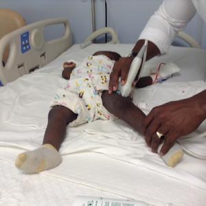 Exame ecográfico numa criança com suspeita de lesão na fise distal do fémur esquerdo