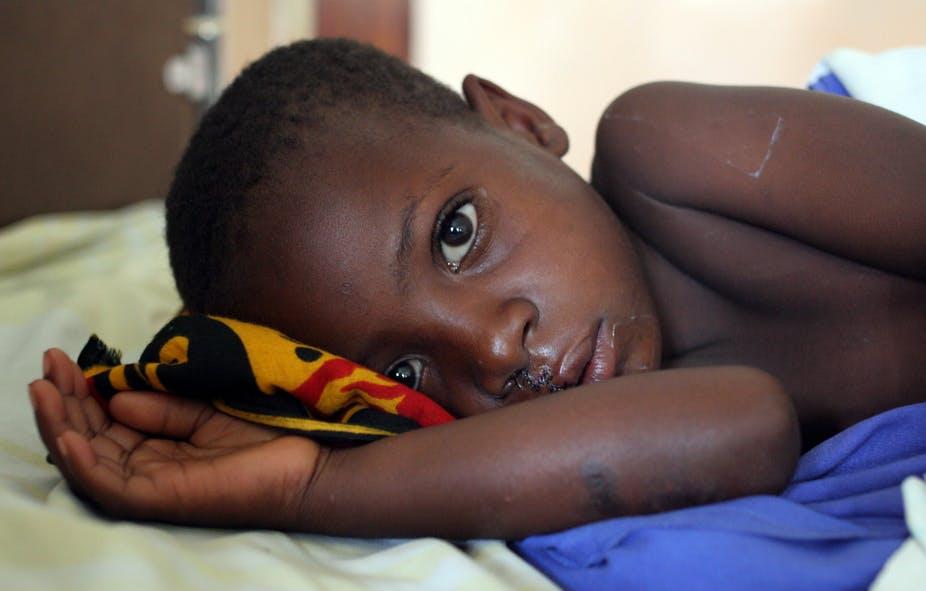 ANGOLA: Crianças anemia falciforme tem maior risco de complicações o Covid-19